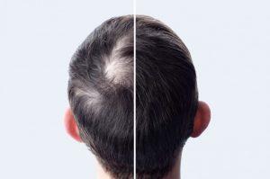 Read more about the article Quel traitement pour traiter la pelade ?